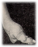 Bound foot of a Chinese woman, 19th century